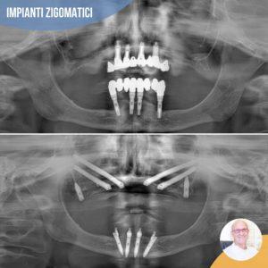 impianti zigomatici senza osso